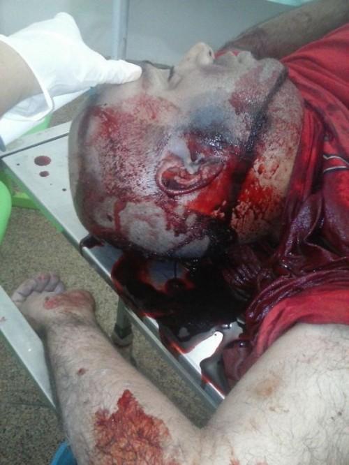 Policial mata homem em Vitória do Mearim