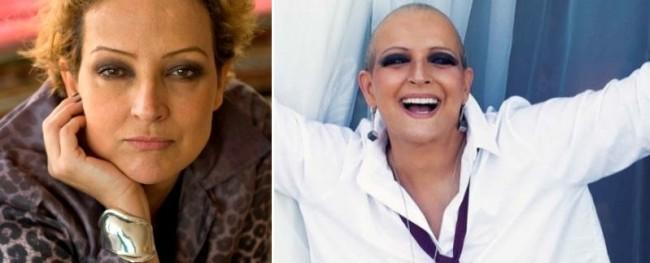 O antes e o depois da atriz Betty Lago