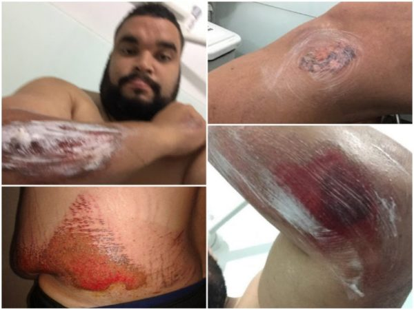 Prefeito Rafael Mesquita mostra as marcas do acidente