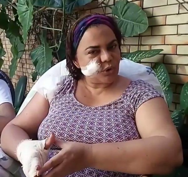 Núbia Dutra cheia de curativos