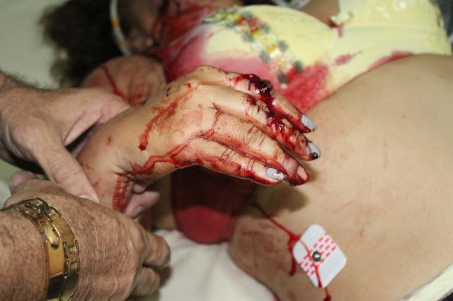 Núbia Dutra com ferimento na mão