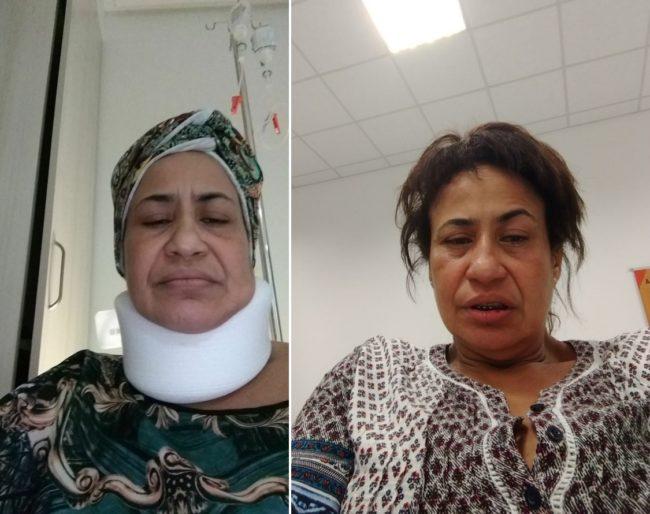 Maria José Brandão Marques Campos mostrando o resultado das agressões