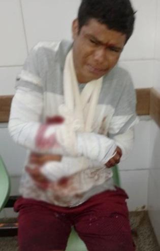 Assaltante Augusto Moreira