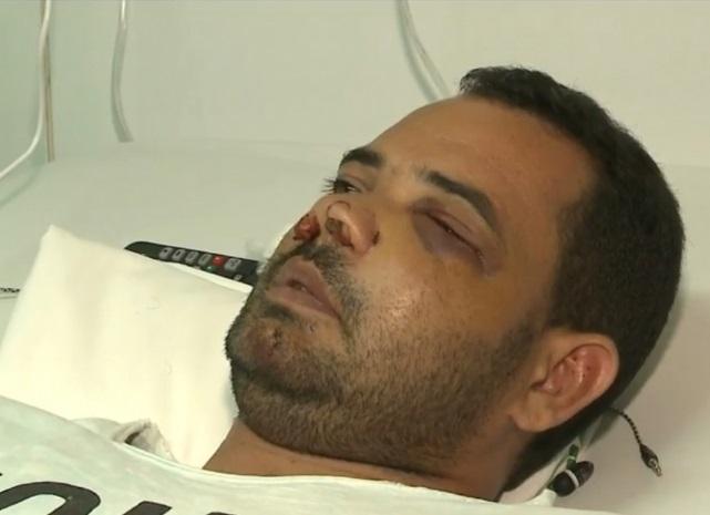Anderson da Silva já recebeu alta