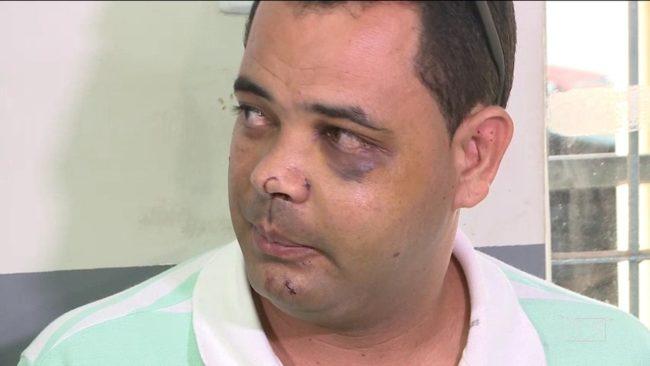 Servidor Anderson Pereira teve alta hospitalar e pede por justiça