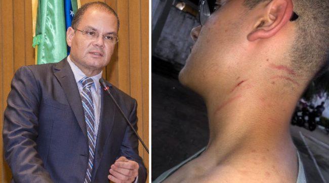 Gustavo Carvalho mostra marcas da agressão que teria sofrido pelo secretário de Estado