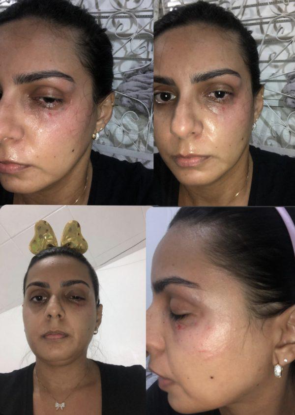 Camila Mota mostra as marcas da agressão