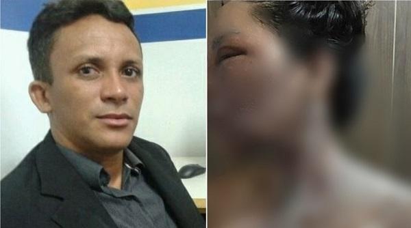 André Coelho é acusado de jogar água quente contra a esposa e atual vereadora de Peritoró, Lionete Araújo